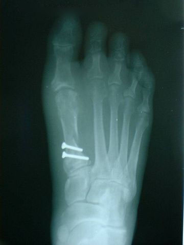 bunion after operation