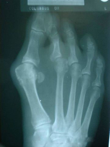 bunion before operation