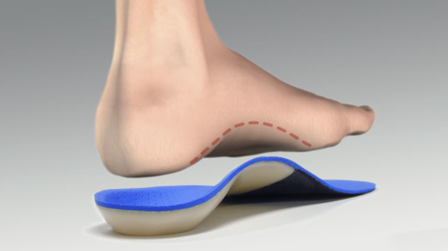 Calluses can be eased with Orthotics - Rocky Hill, Newington ...